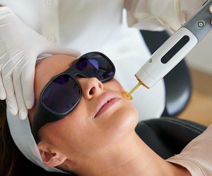 patient receiving skin needling treatment
