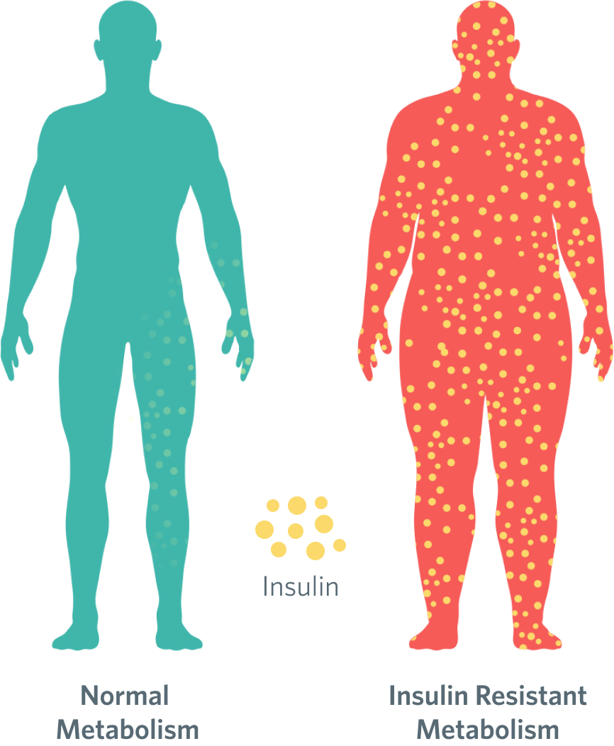 Two male silhouettes, comparing an individual with a normal metabolism to someone with insulin resistance