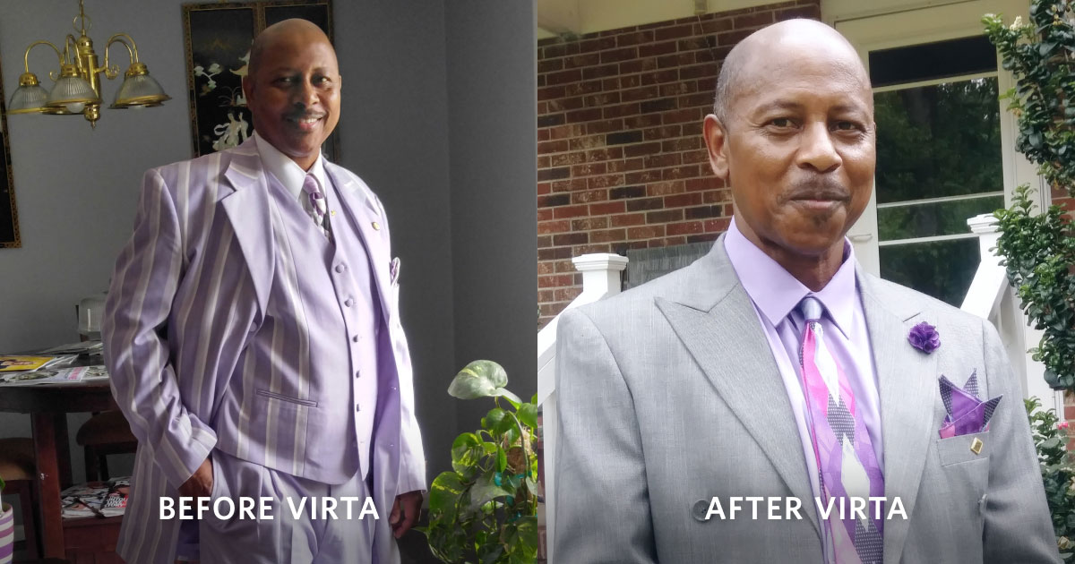 Before and after photo of Kenneth, Virta patient