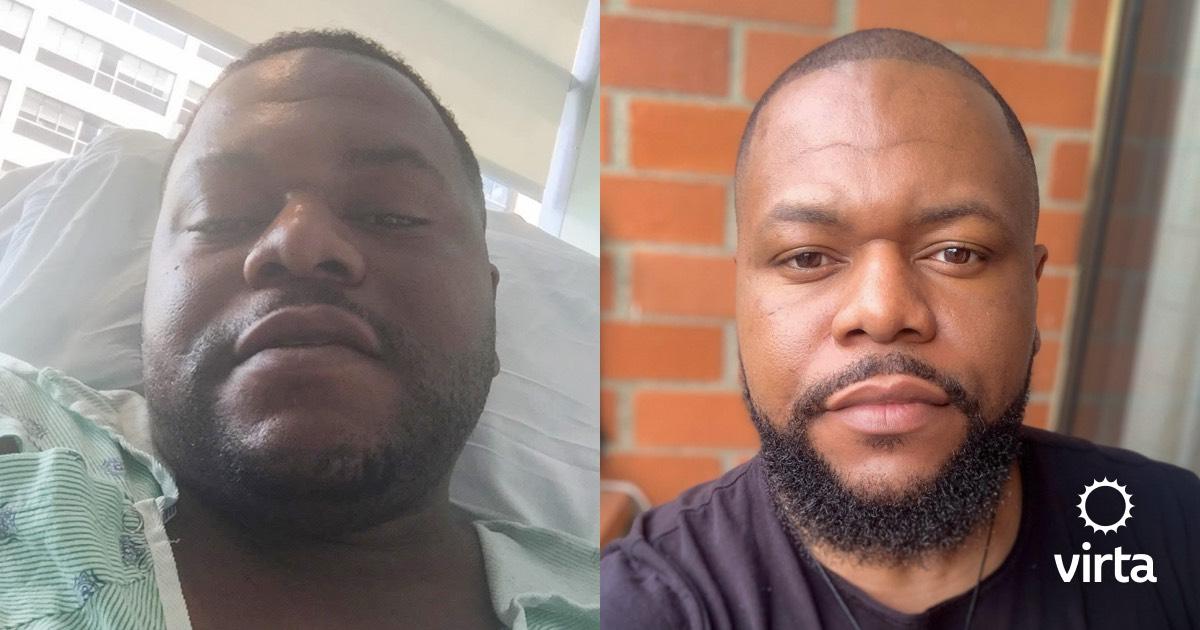 Japhet reversed type 2 diabetes with help from Virta