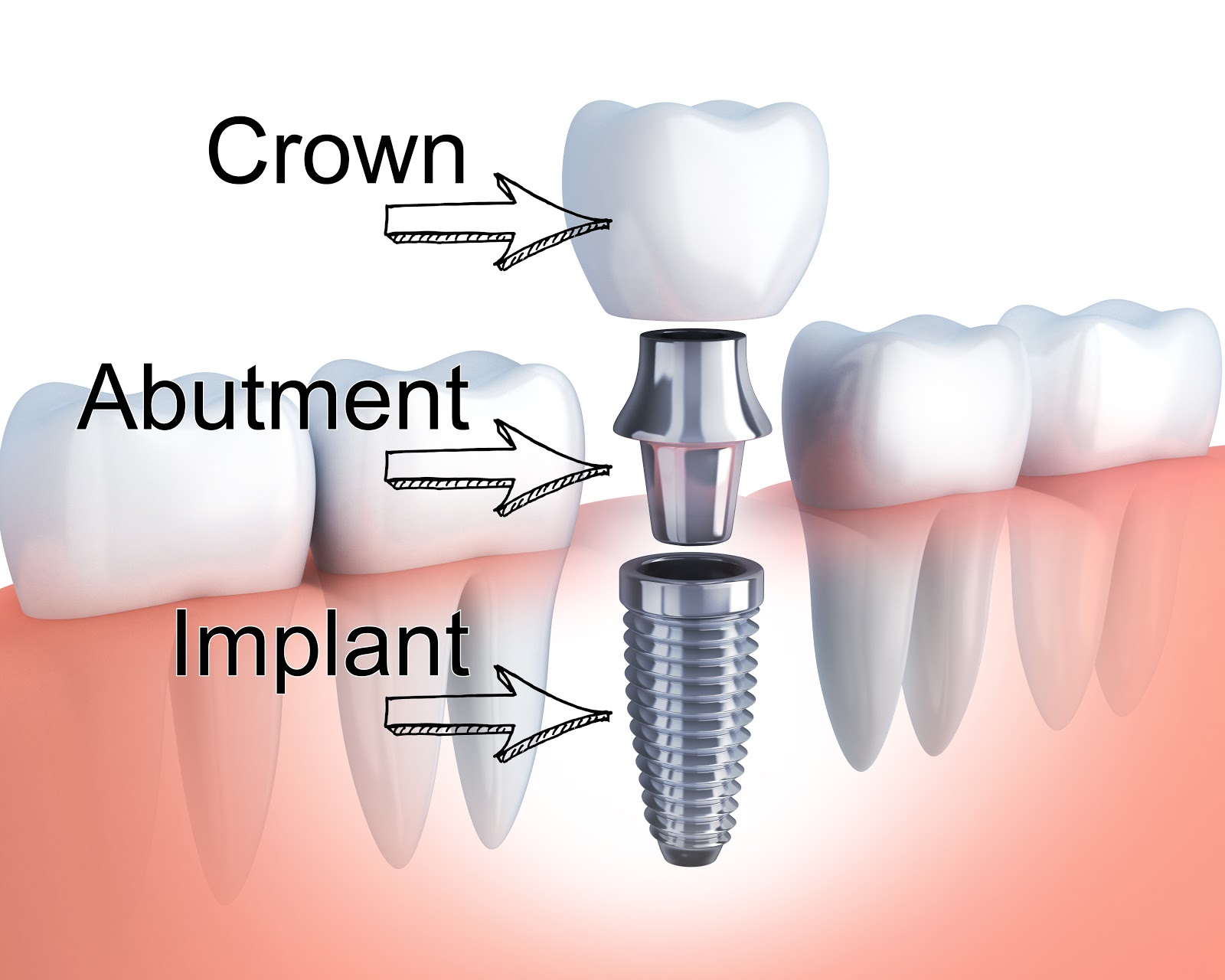 Anatomy of a single tooth dental implant: implant, abutment, and crown