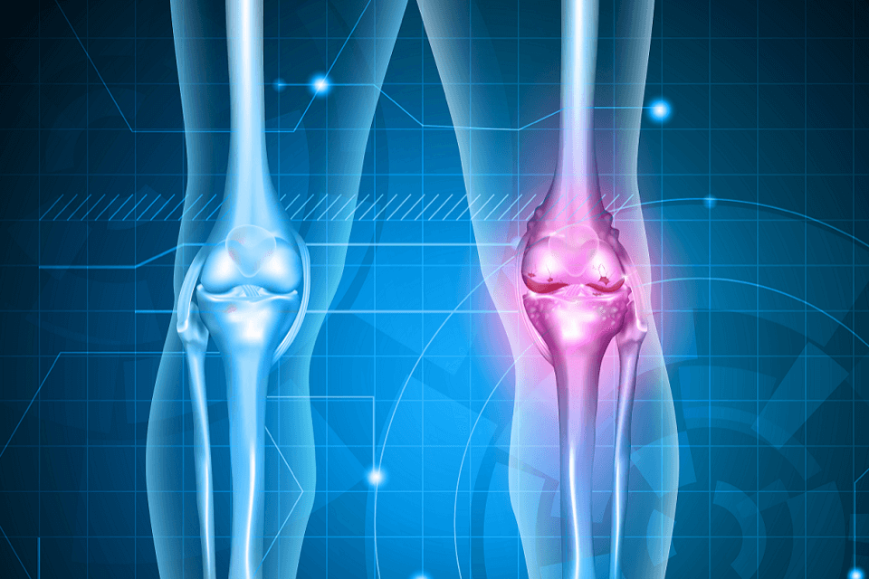Innovations in arthritis treatment credited to whole body donation