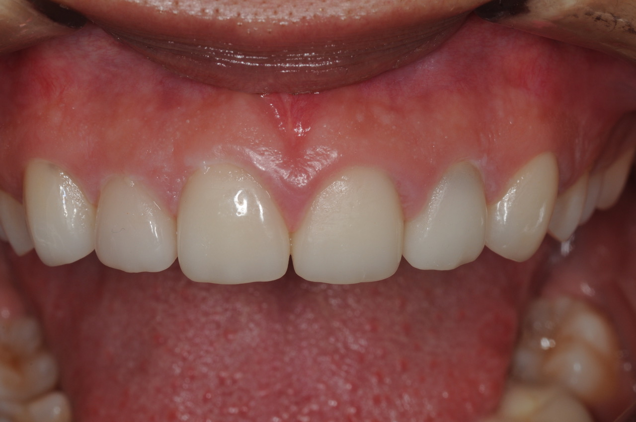 Poor shape and uneven gums