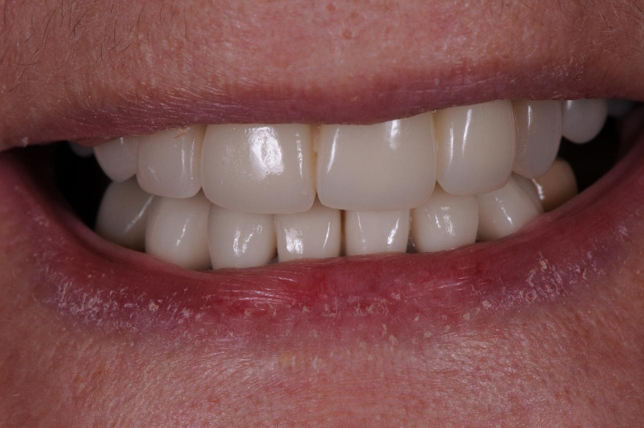 A failing dentition