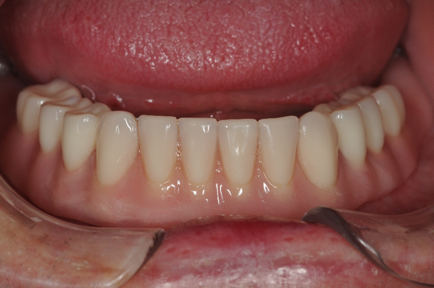 The Overdenture in place