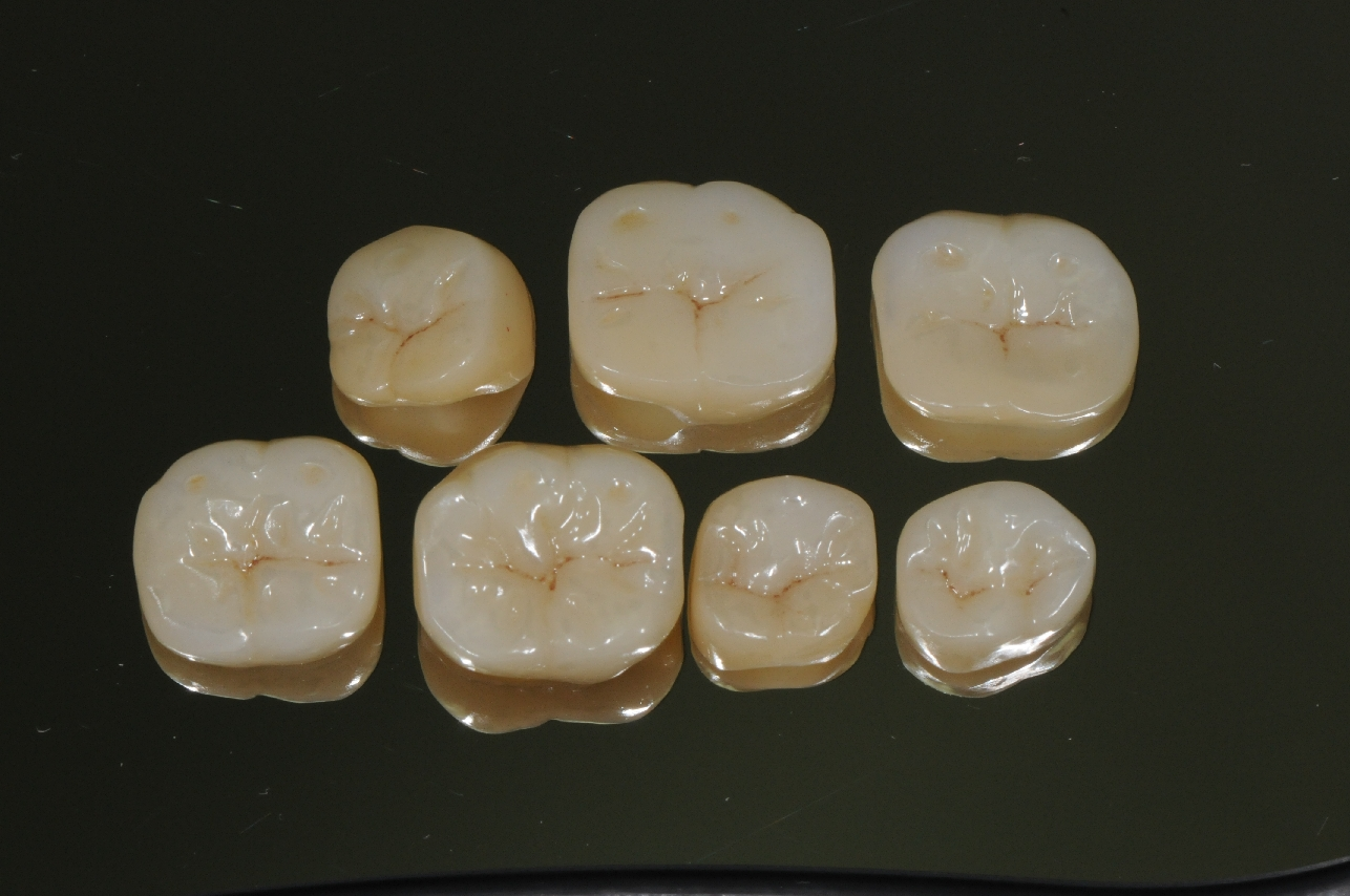 Posterior Crown - Zirconia
