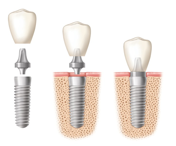 Stages of a Dental Implant