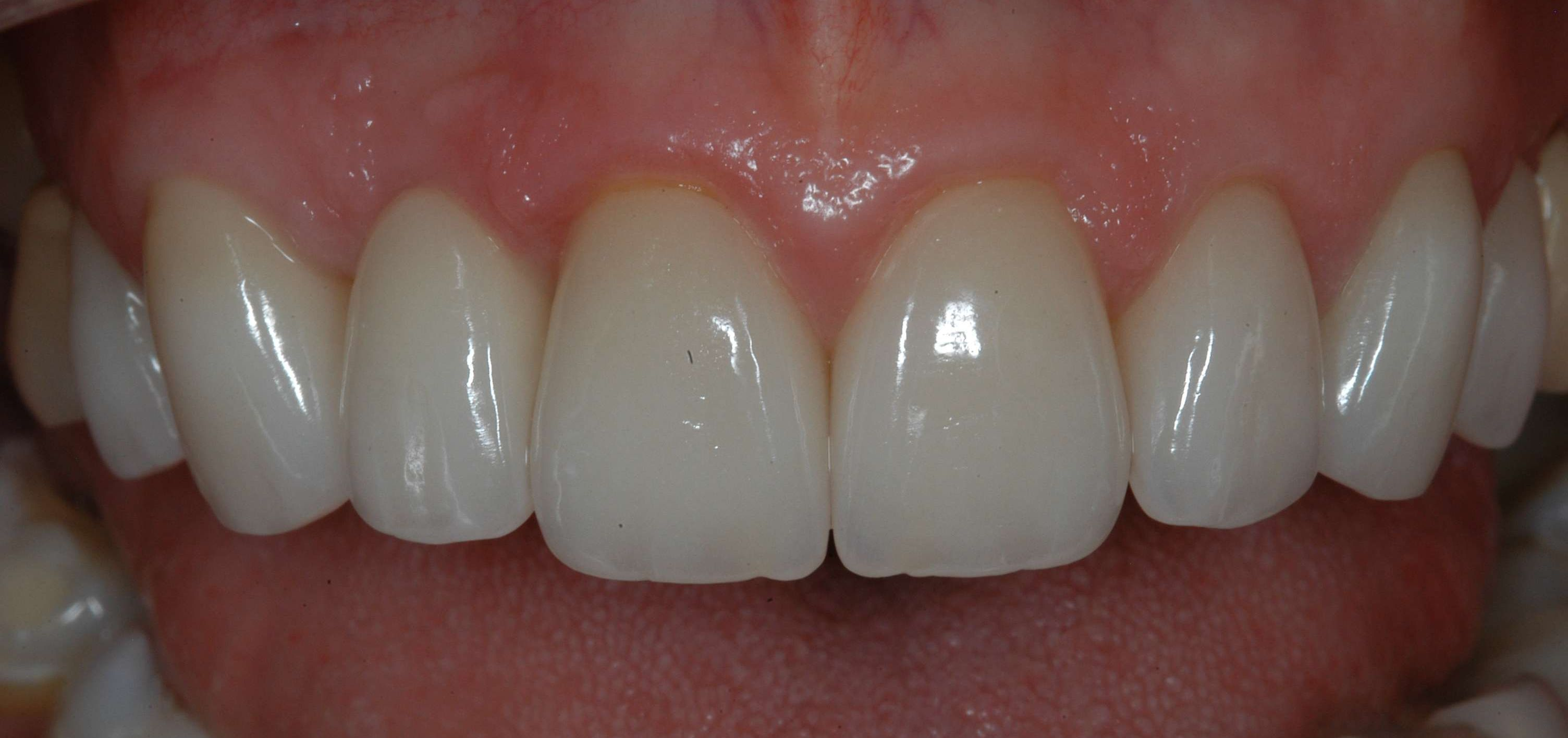 New all-porcelain crowns