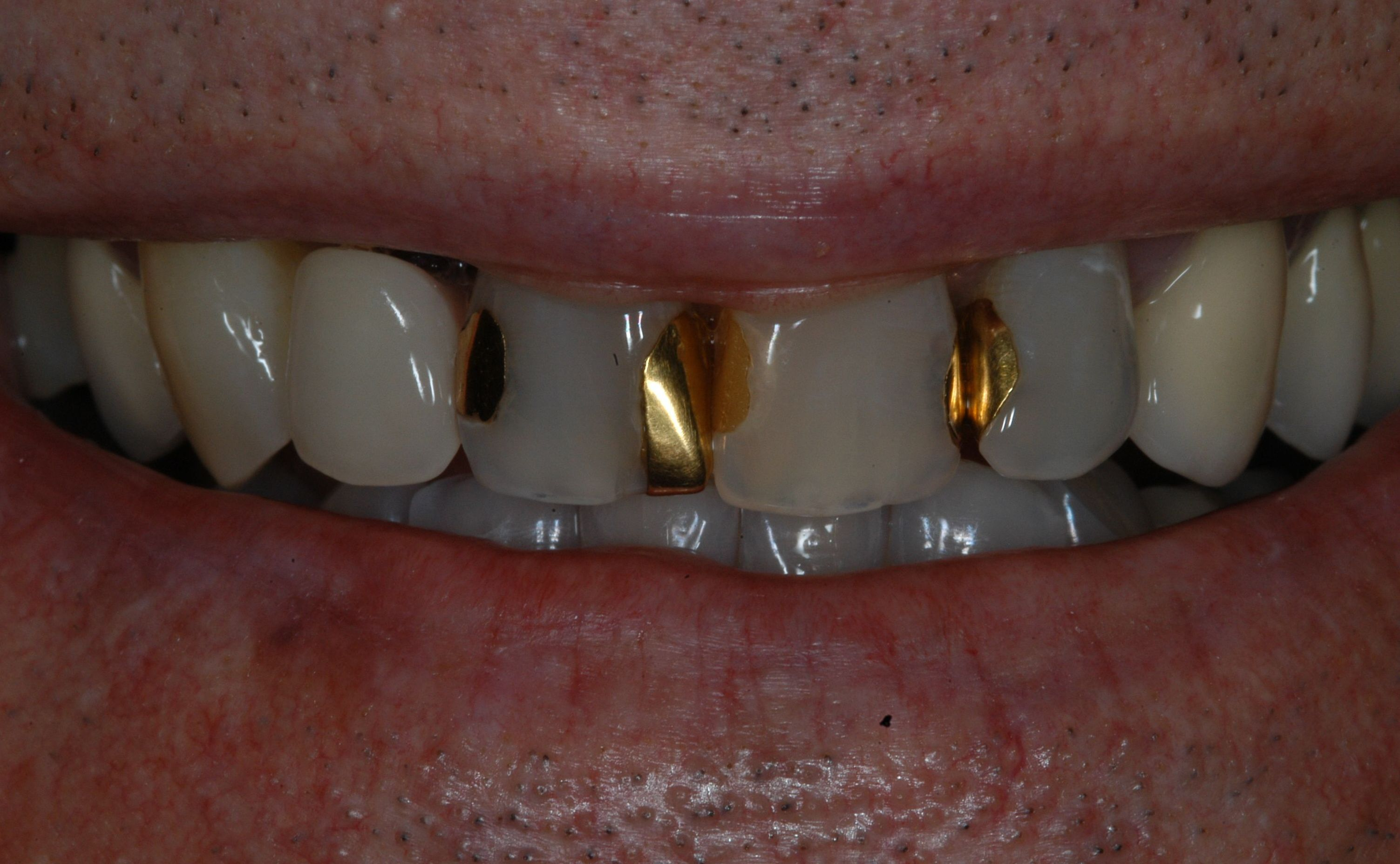 Old fillings and gold teeth