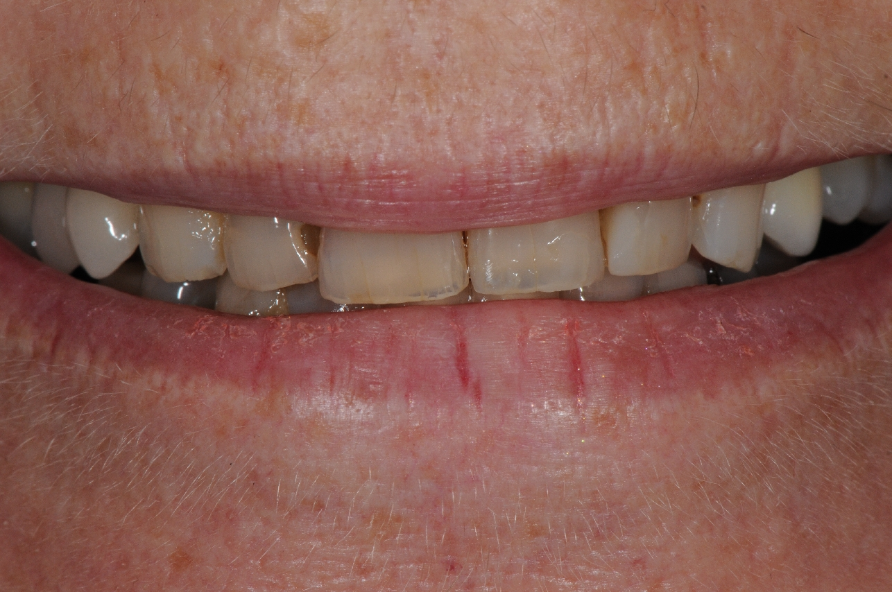 The old and worn teeth