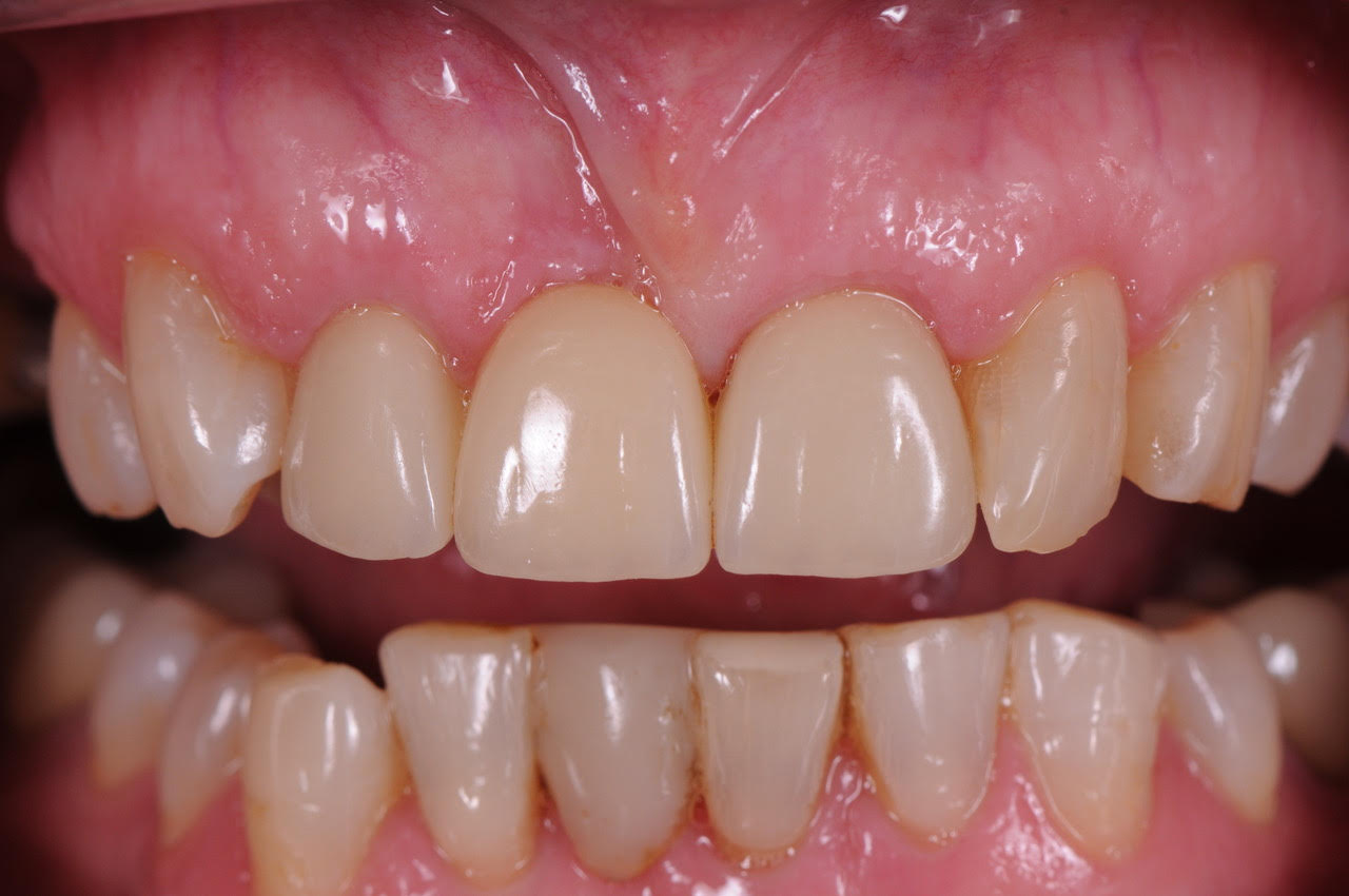 The new zirconia bridge