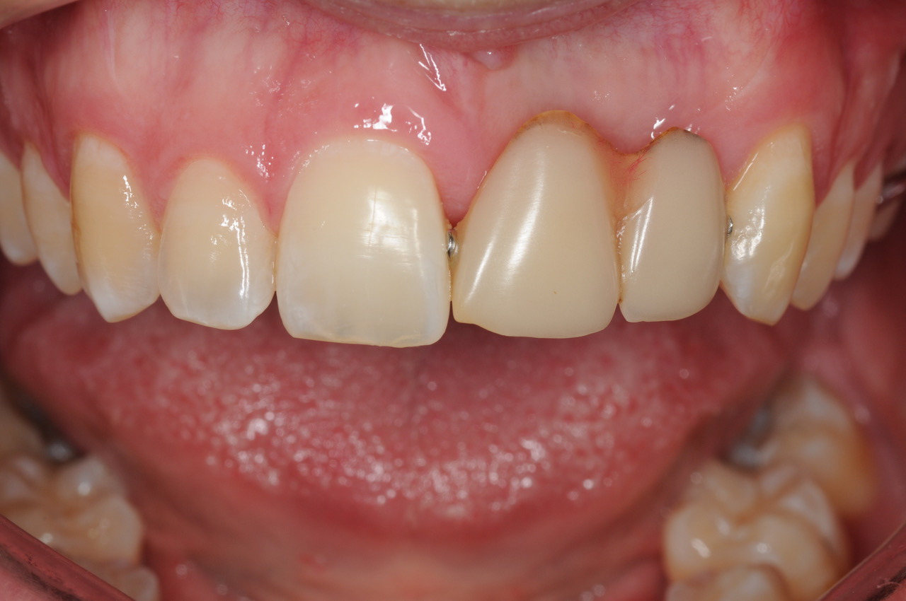 The Partial Denture