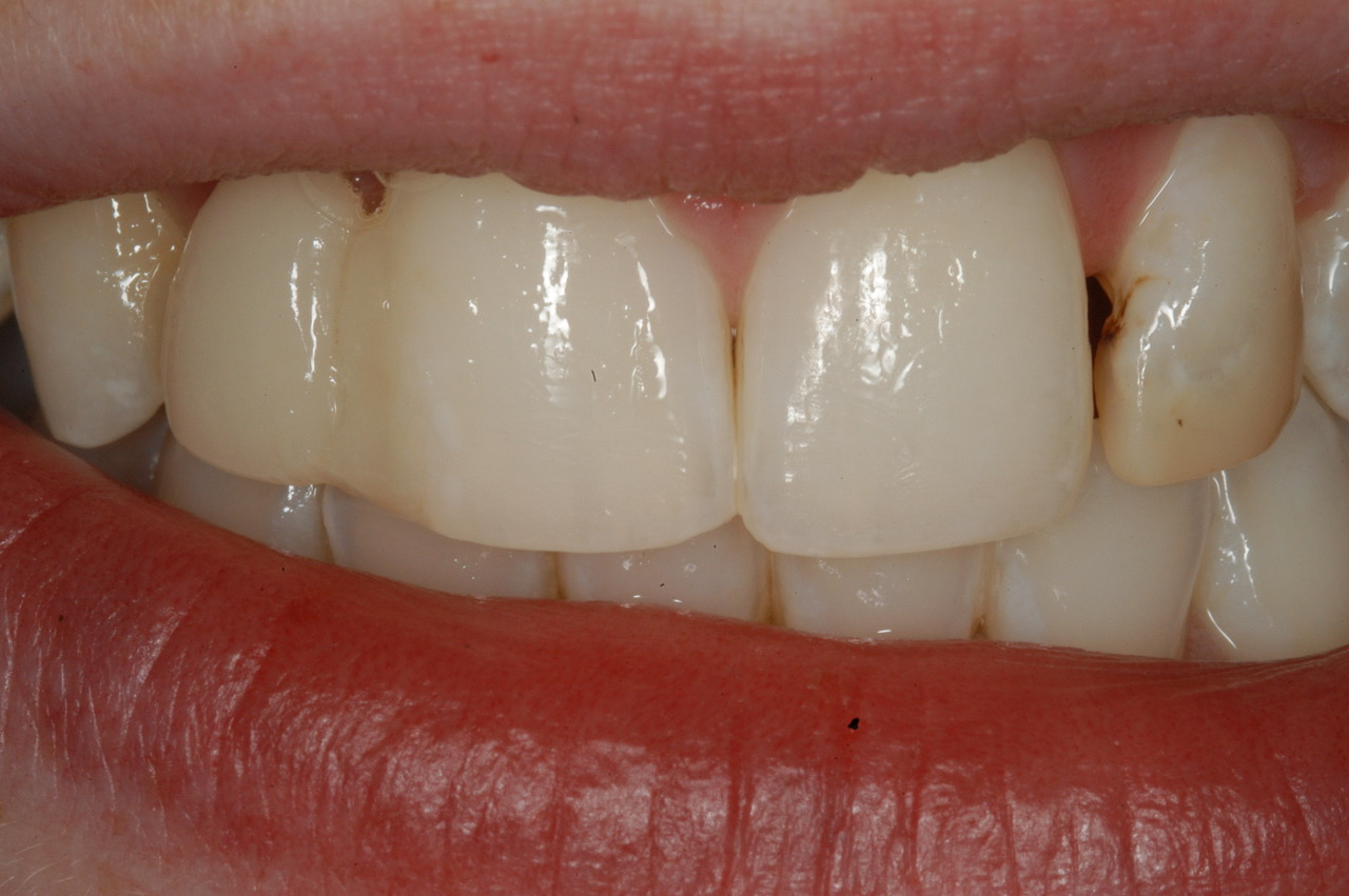 Both lateral incisors require treatment
