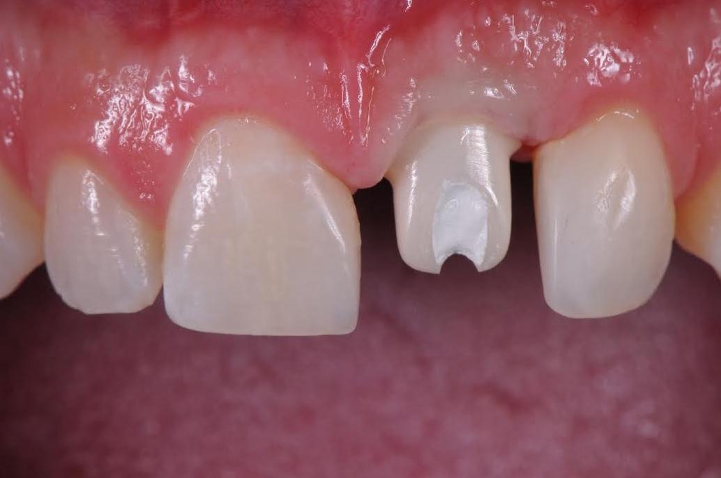 Implant - Zirconia Abutment