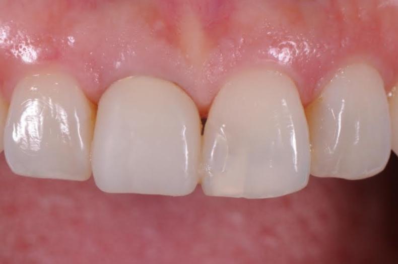 Temporary Partial Denture