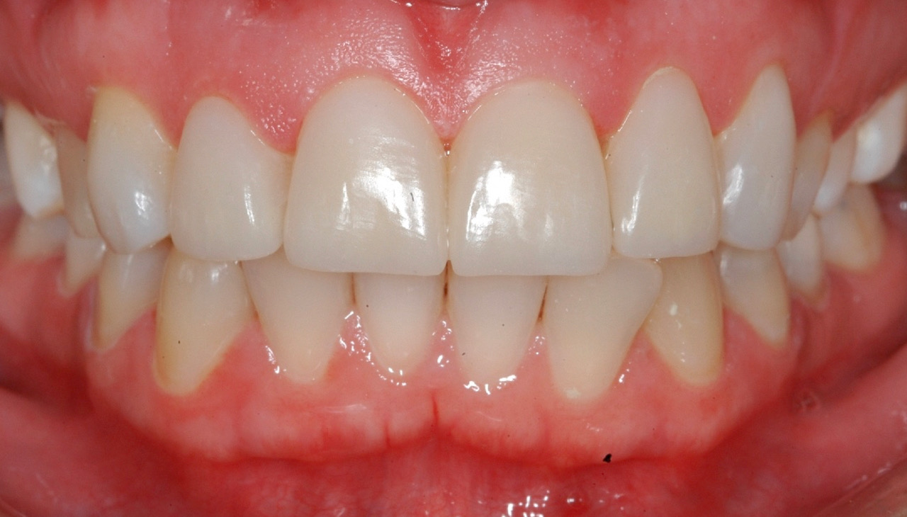 After Composite Buildups