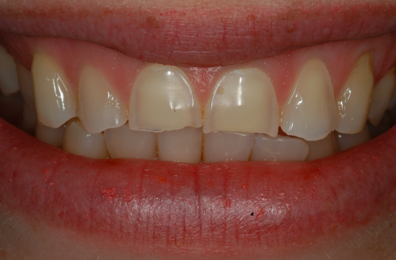 Loss of enamel on the incisors