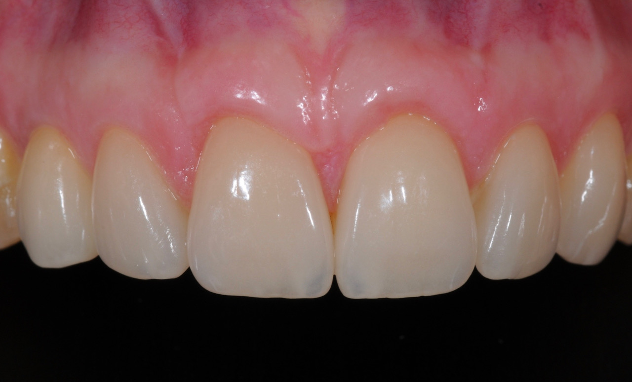 After treatment with Porcelain Veneers