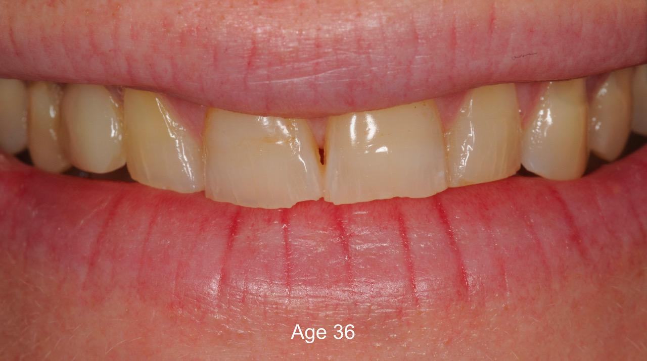Pre-treatment smile