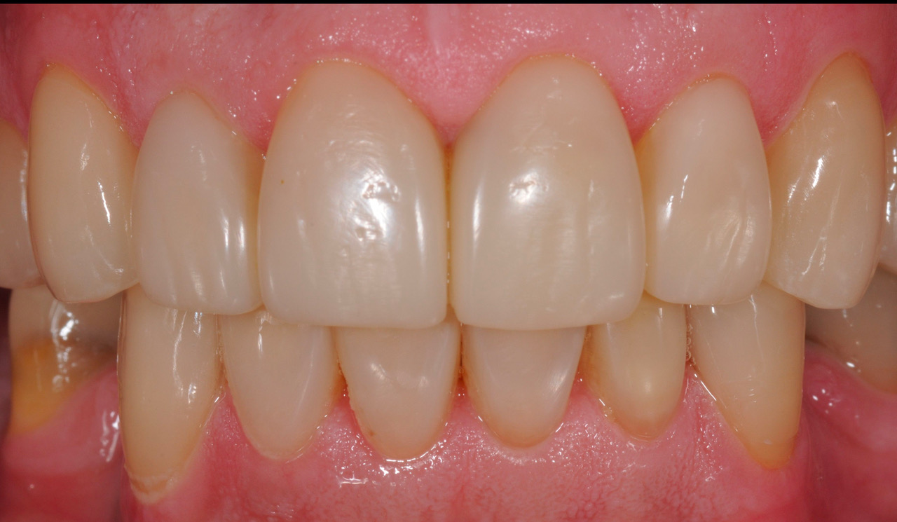 After Buildups and Porcelain Crowns