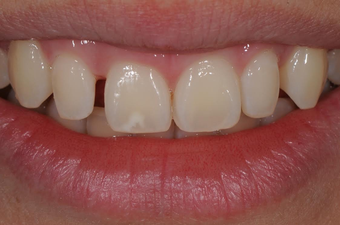 Correcting Peg Laterals after Orthodontics