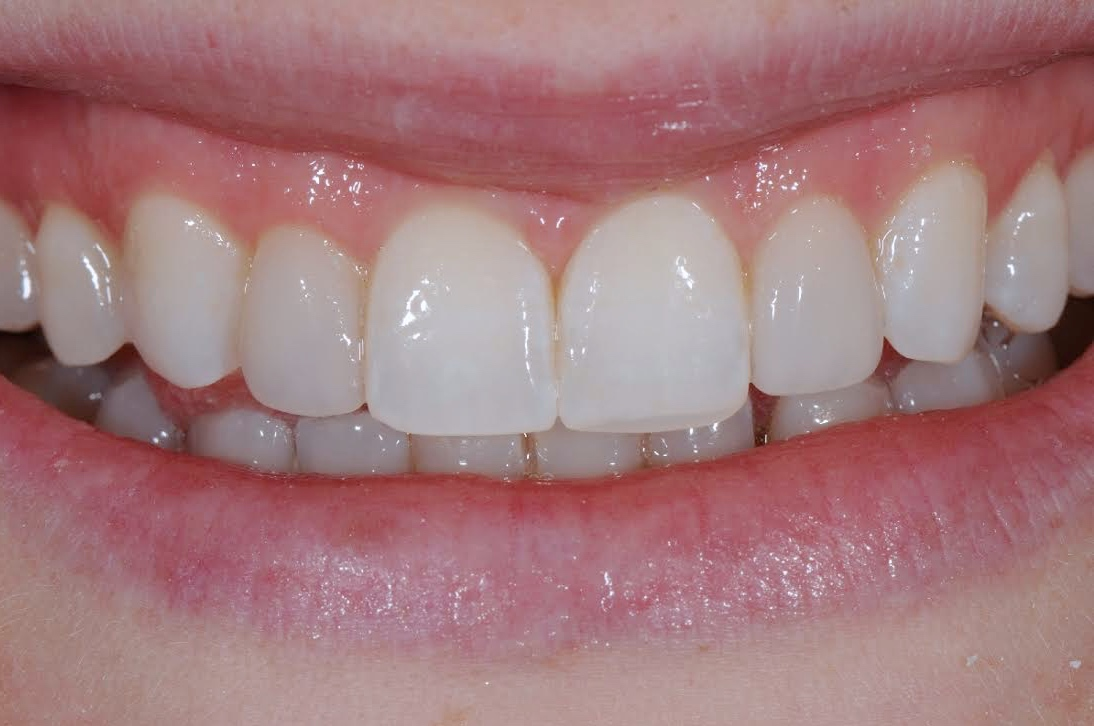 The Smile After New Composite Veneers