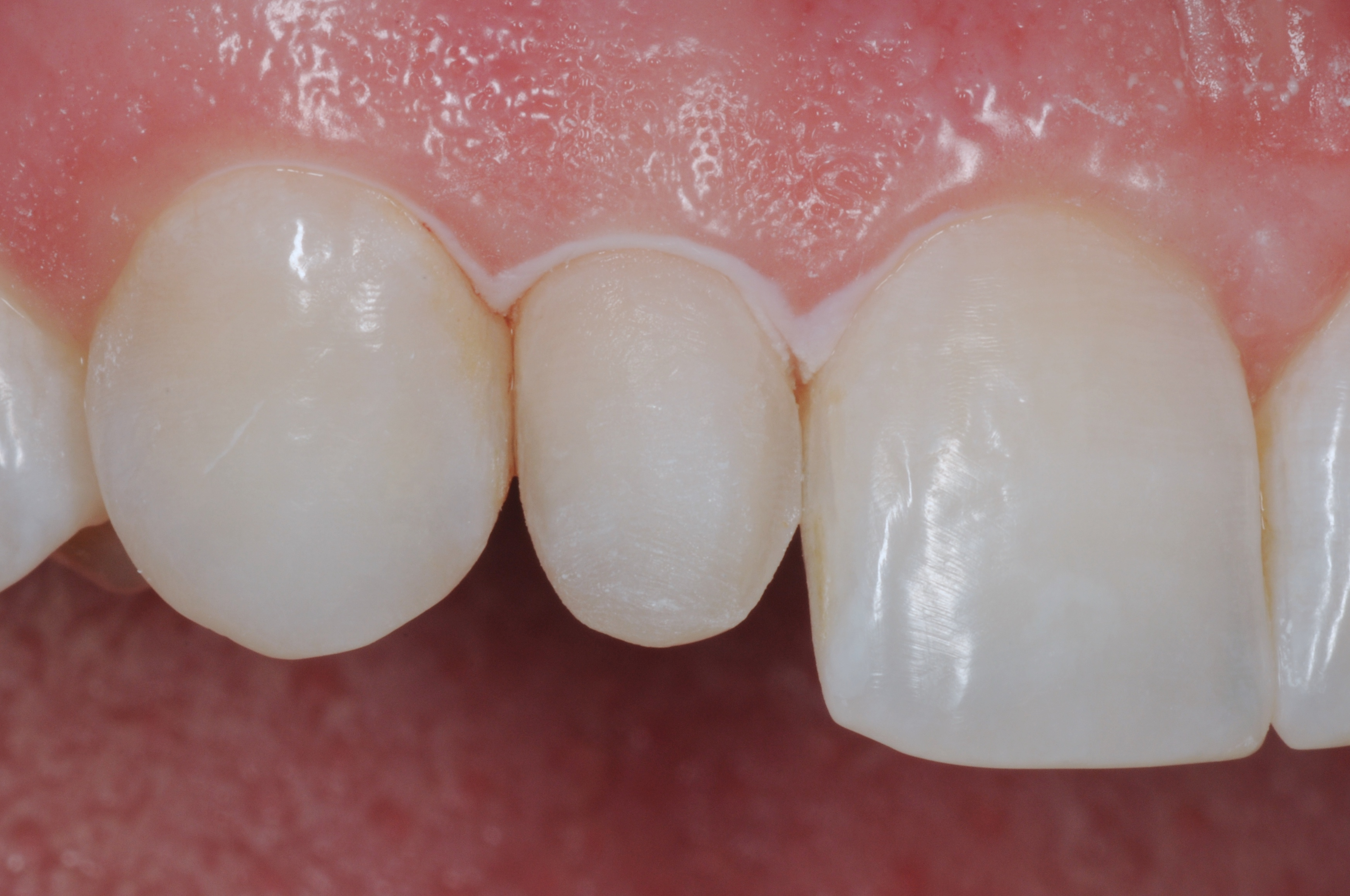Removal of the Old Veneers