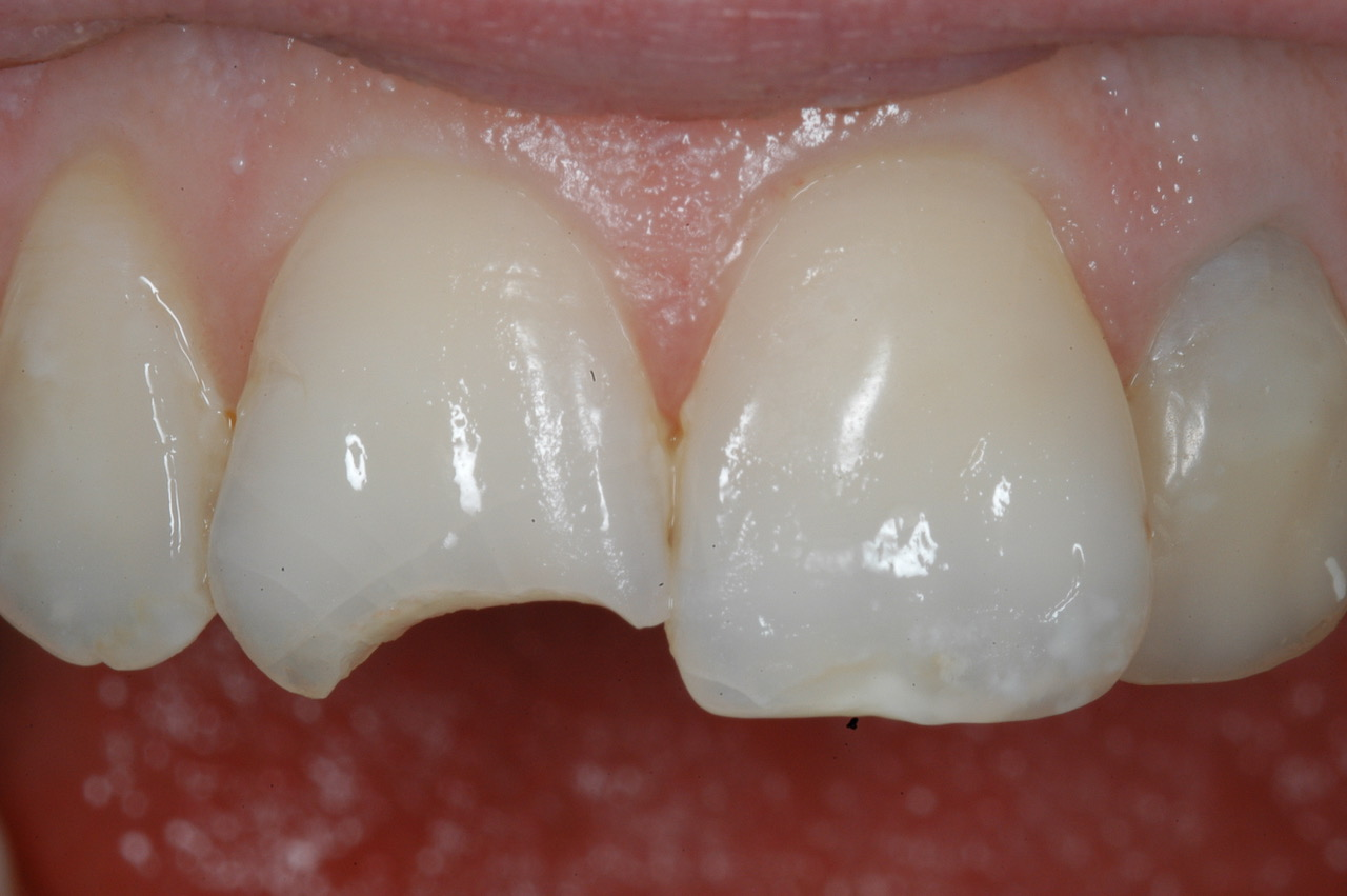 Fine tooth features
