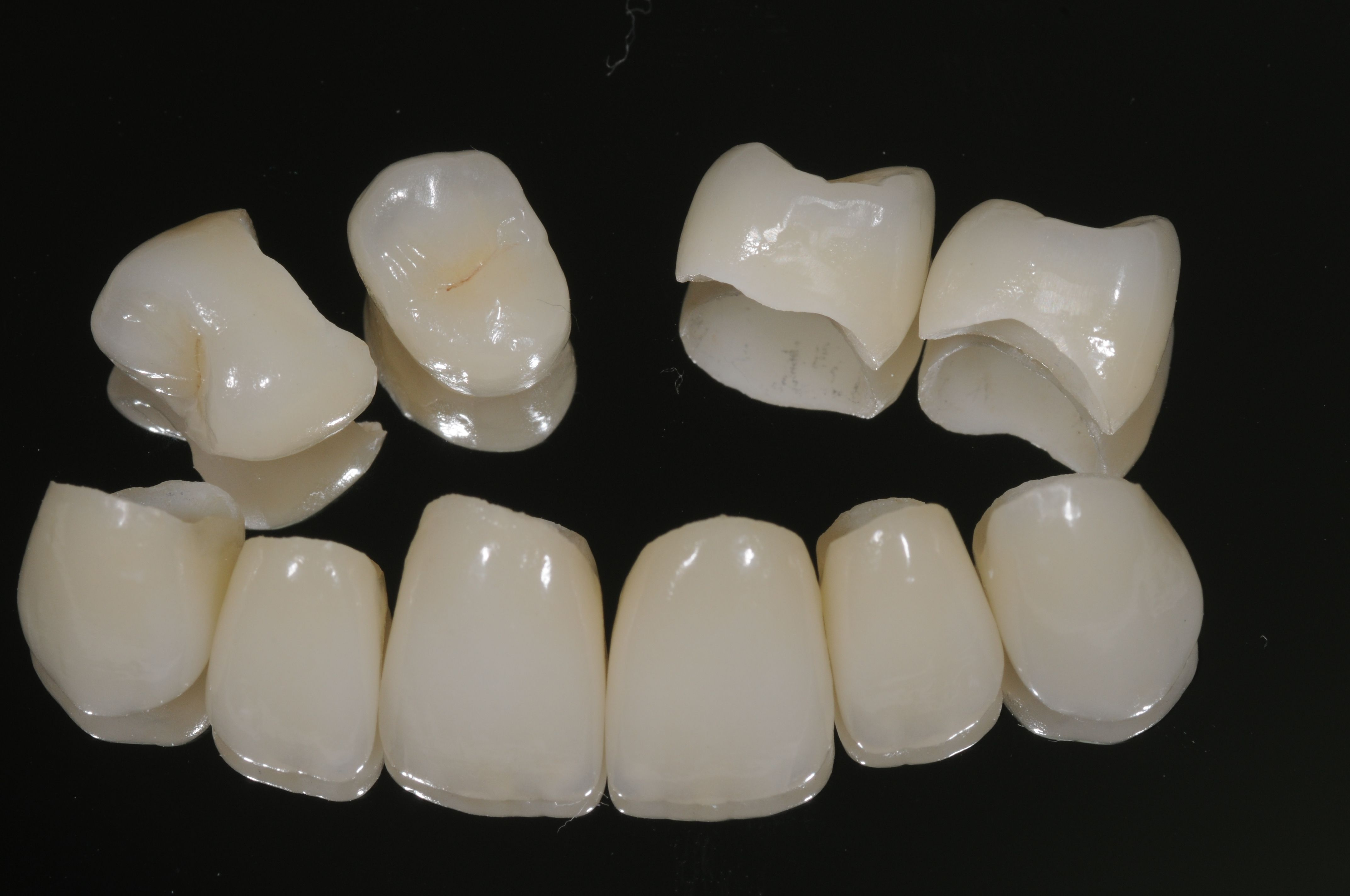 An example of high quality porcelain