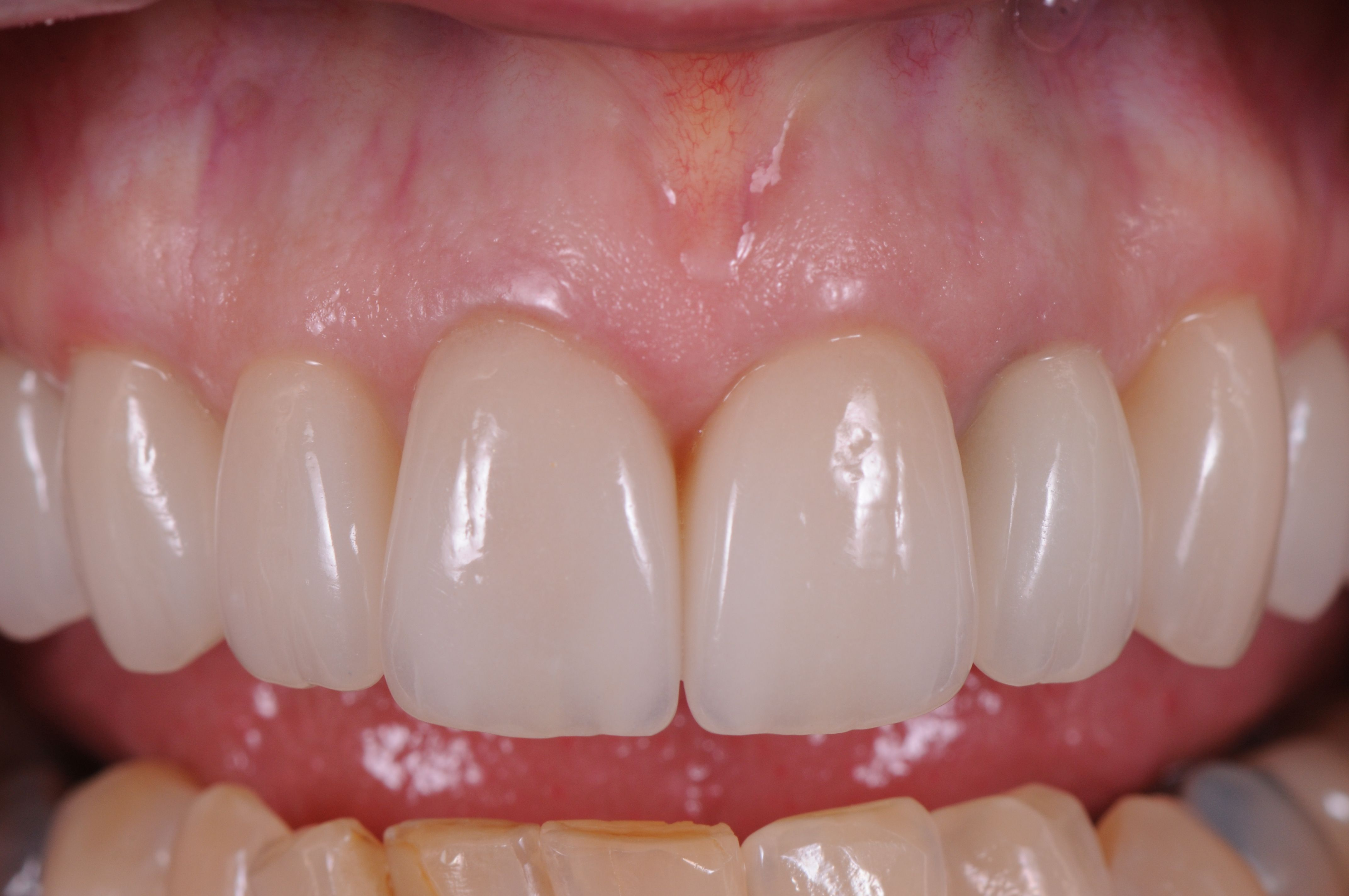 Perfectly made and fitted porcelain allows perfect gum health