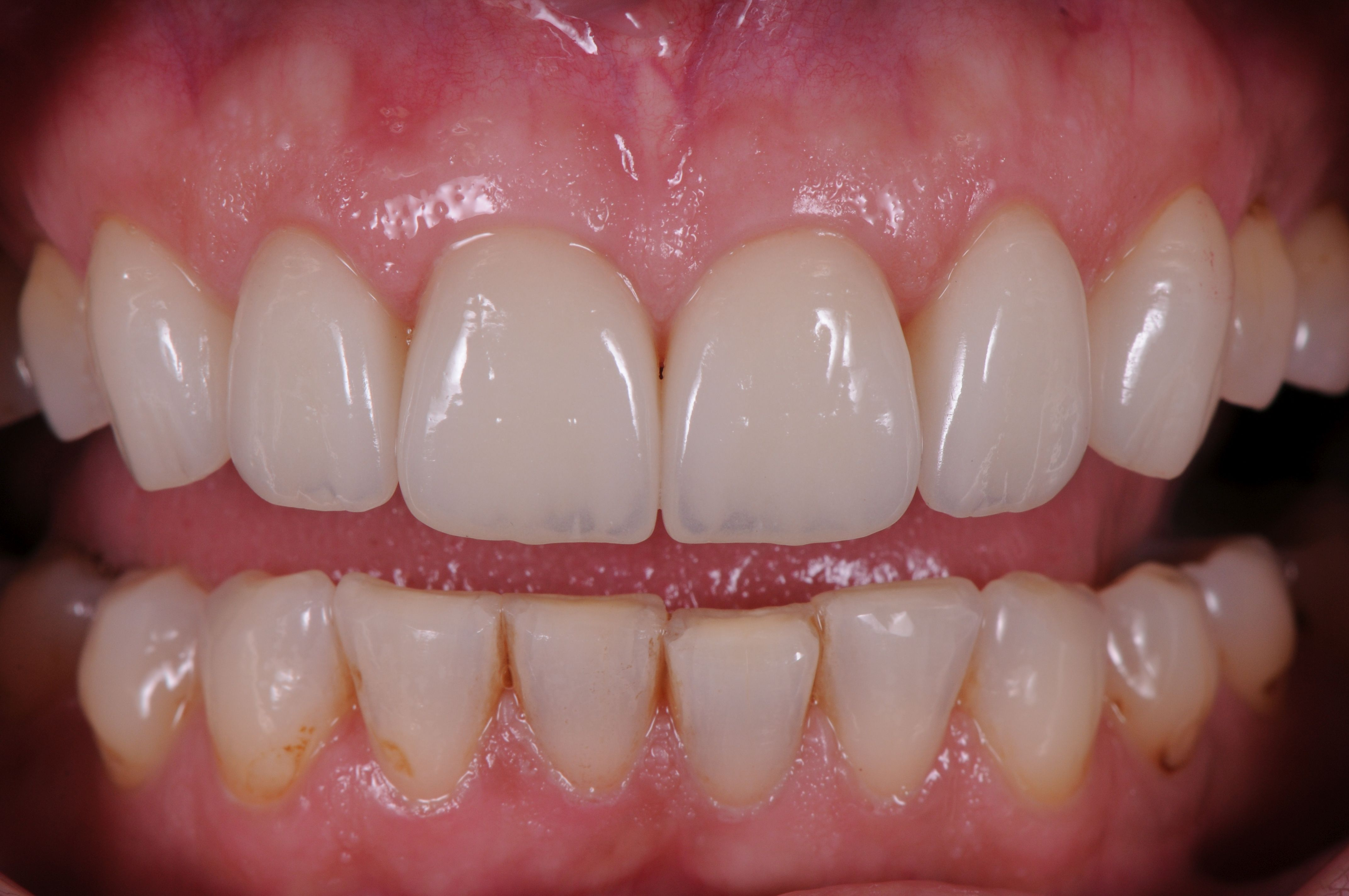 Perfect Porcelain Crowns