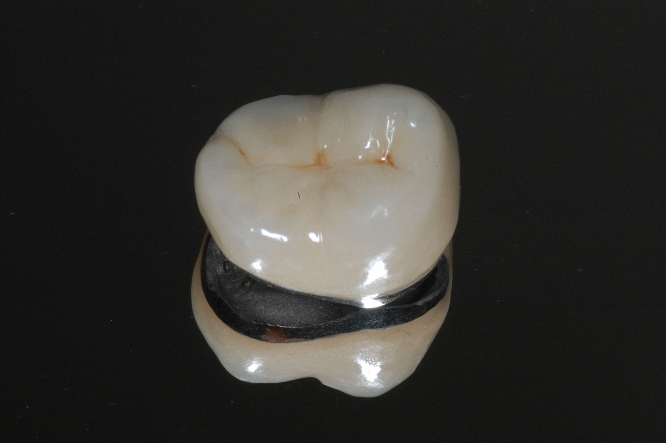 Posterior Crown - PFM (Porcelain Bonded to a High Gold Alloy)