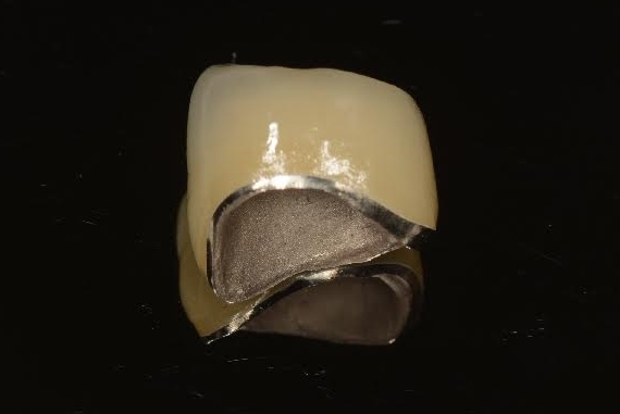 Photo of a PFM crown showing its gold base margin
