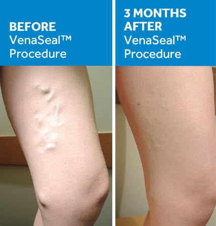 chronic venous insufficiency treatment BASS Vein Center Walnut Creek