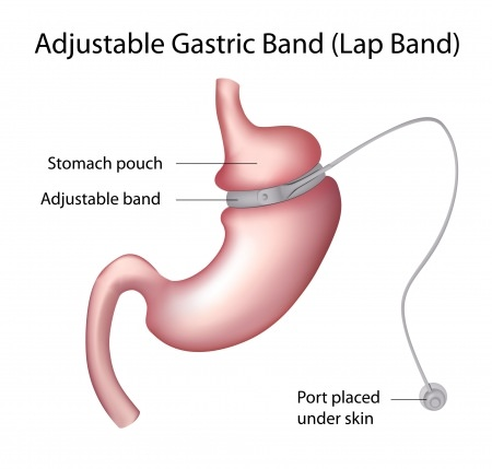 BASS Bariatric Surgery Center - Gastric Band