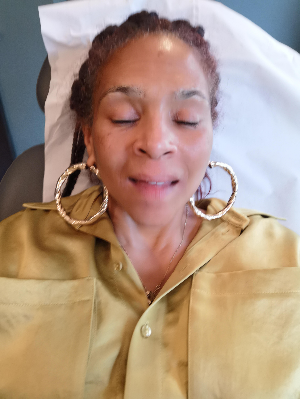My Migraine Remedies Journey Holistic to Botox Beauty Relief