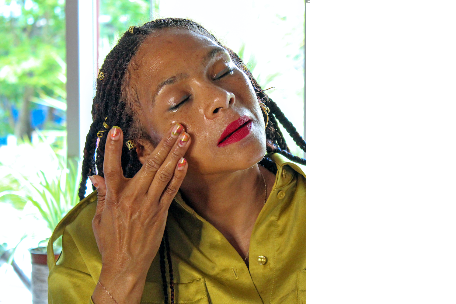 Why I Tried Holistic Remedies & Botox to Cure My Migraines