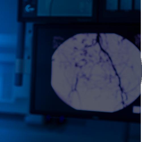 Neuro-Interventional Radiology