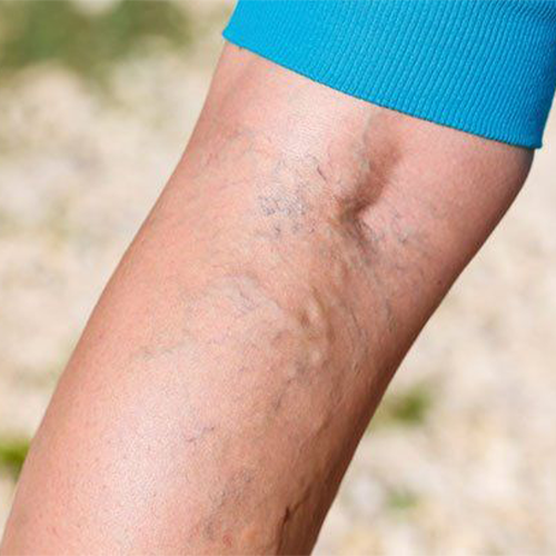 5 Signs You Have Varicose Veins (And What To Do)