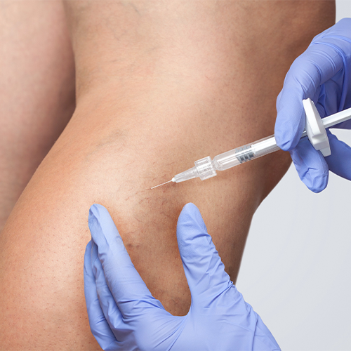 Stop Putting Off Vein Treatment During COVID