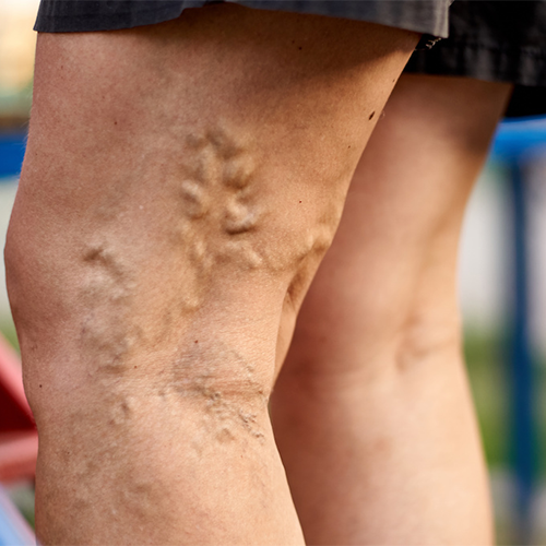 Varicose Veins: 5 Signs You Should See a Doctor