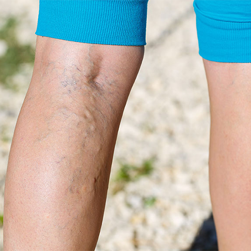3 Different Types of Varicose Veins