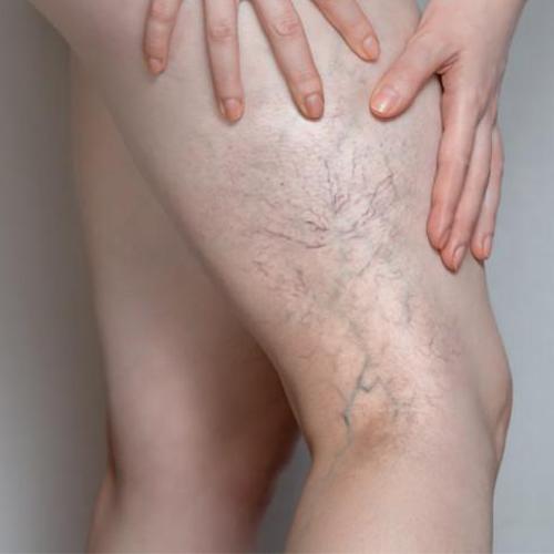 Spider Veins: How They're Caused & How to Treat Them