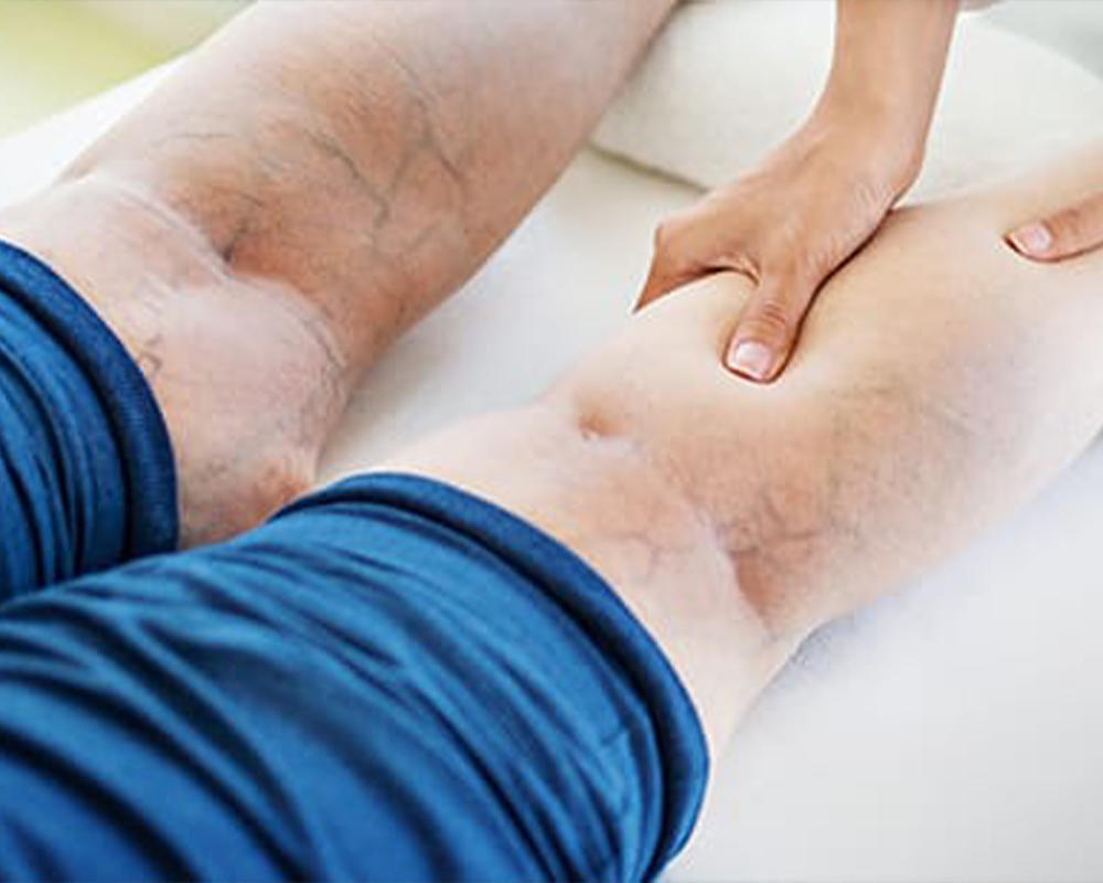 Chronic Venous Insufficiency: 5 Most Common Causes