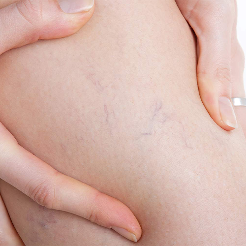 Who qualifies for vein treatment?