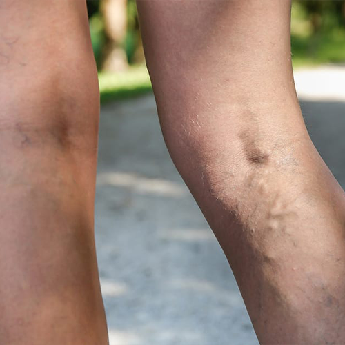 What should I do to prevent varicose veins from coming back?
