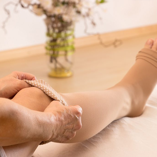 Will my varicose veins come back after vein treatment?