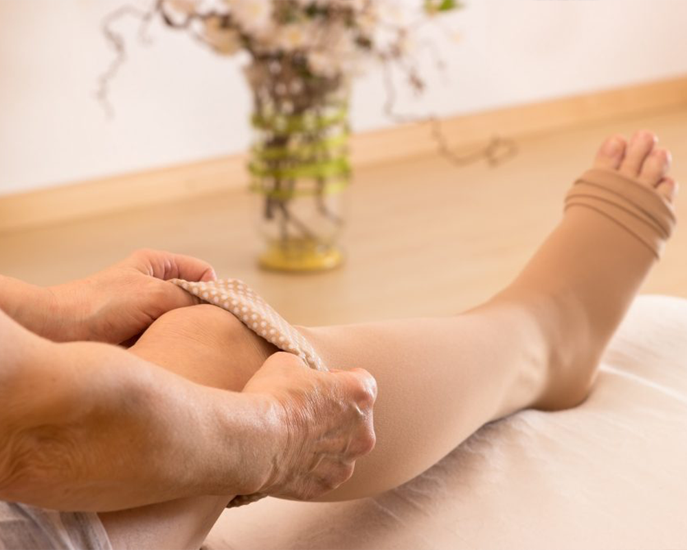 Will my varicose veins come back after treatment by Rajiv Nagesetty - BASS  Vein Center