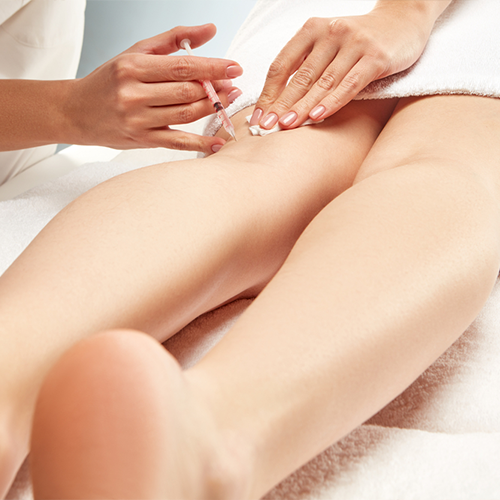 Laser Vein Treatment Vs. Sclerotherapy Treatment: What's the Difference?