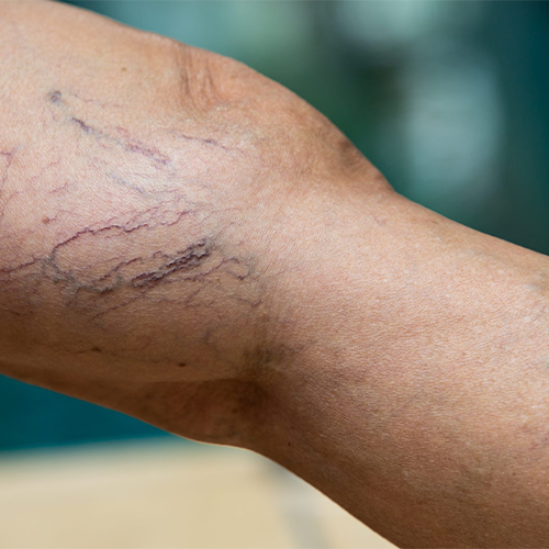 Spider Veins: Can They Go Away on Their Own